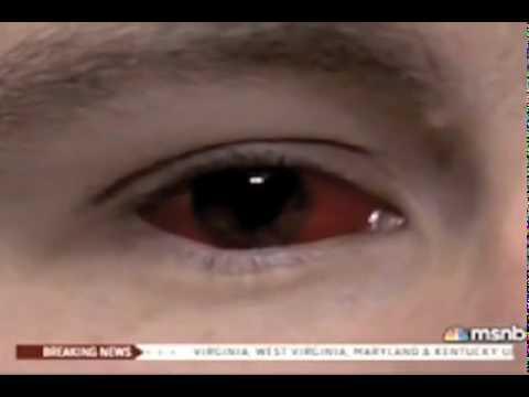 Человек с красными глазами