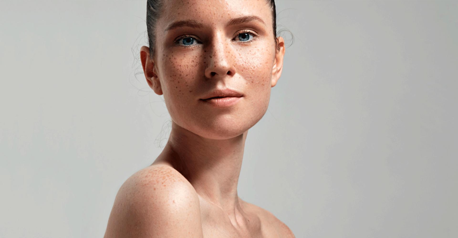 Борьба с гиперпигментацией кожи: как победить?