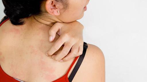 Как убрать пигментные пятна на спине