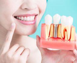 История имплантации и зубных имплантантов