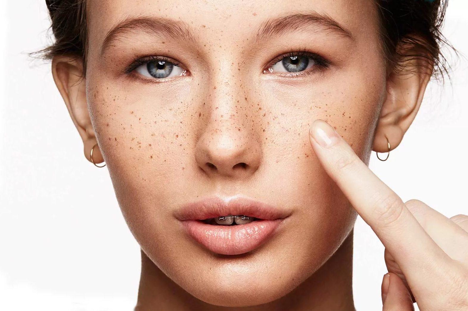 Пигментные пятна на лице: причины развития, диагностика, лечение