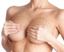 Маммопластика: виды имплантатов, методы их внедрения